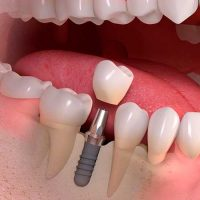 Colocación interfase sobre Implante Dental Straumann