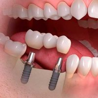 Colocación interfases sobre Implantes Dentales Straumann