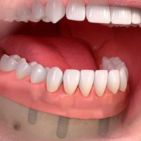 Dentadura completa inferior sobre 4 Implantes Dentales
