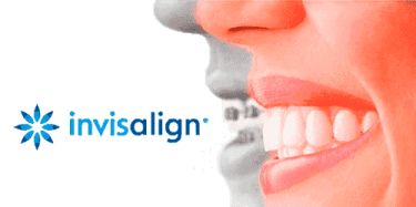 Invisalign_PNG_2020